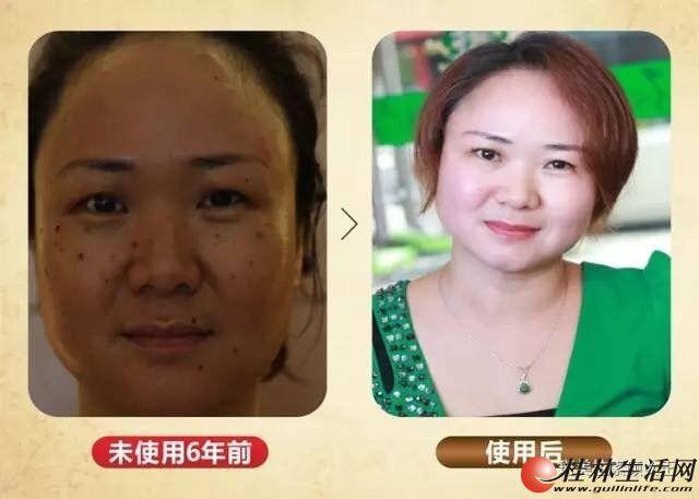彻底解决青春痘、斑、黄气、改善皱纹等脸部皮肤问题