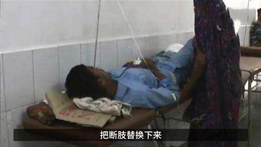 男子车祸被截肢 医院让断腿当枕头 反正闲着也是闲着