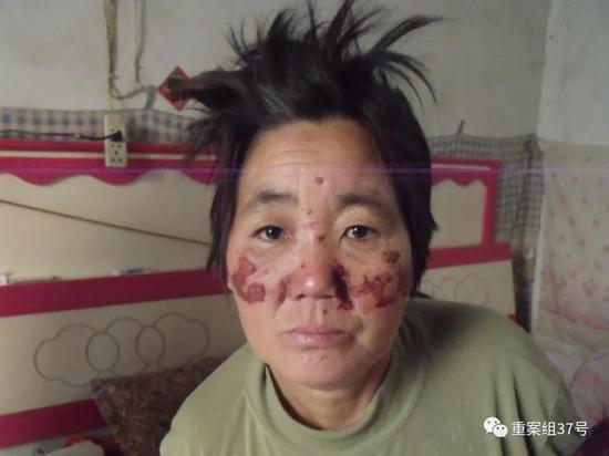 ▲2013年12月,王秀娥被吴学占团伙非法拘禁后,脸部遗留多处伤疤。受访者供图