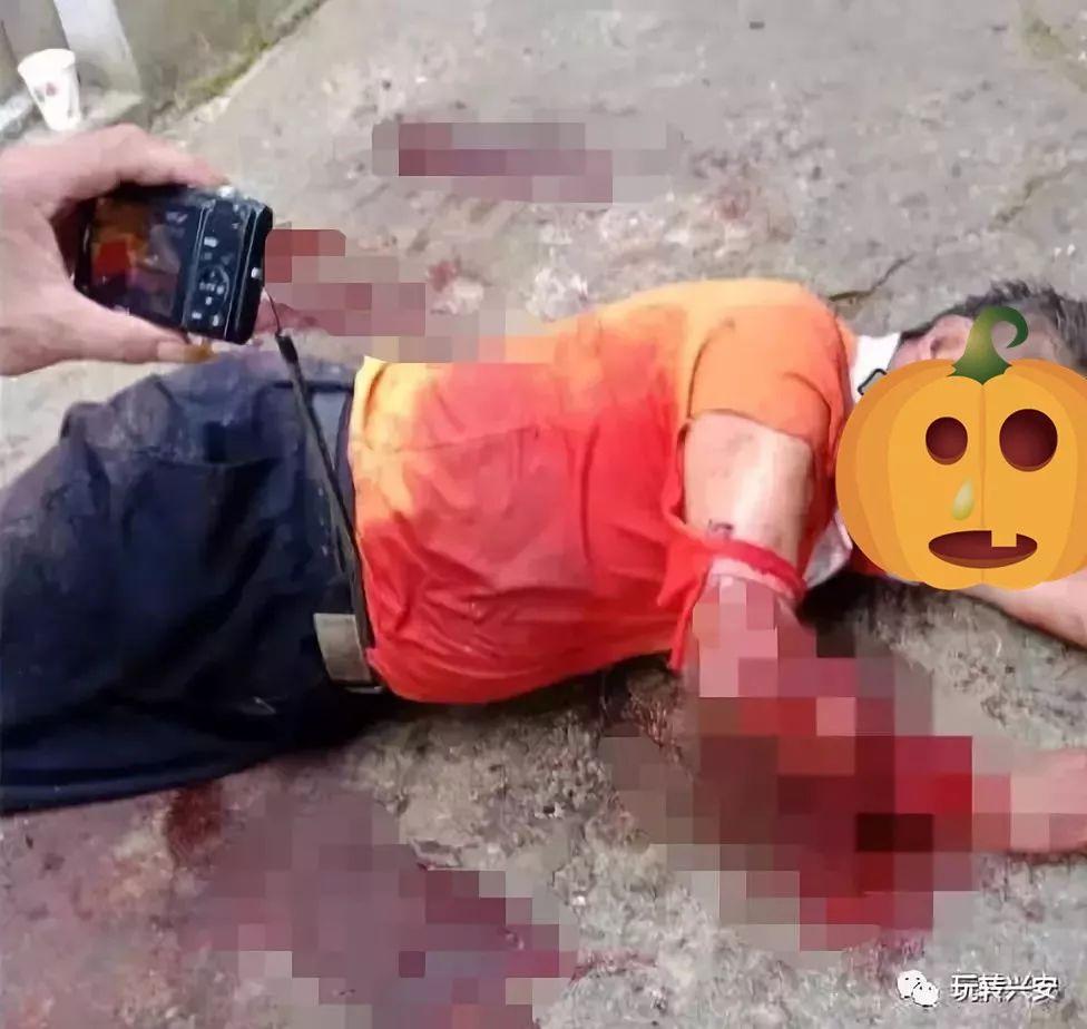 桂林70岁老人被狗咬伤  手臂见骨!记者走访事情真相  狗已被处理……