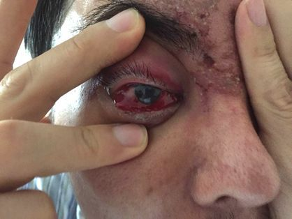 女子注射玻尿酸致右眼暴盲