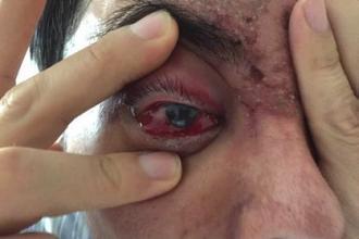 一女子注射玻尿酸致右眼暴盲