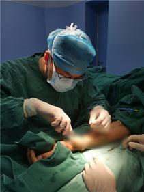 """市中医院成功为一例患有巨大""""动脉瘤""""血透患者实施手术"""
