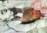 桂林六合路大火,男子特重度烧伤